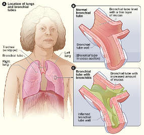 Bronchitis chart